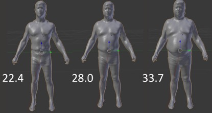 3D OPTICAL BODY SCAN EXAMPLE